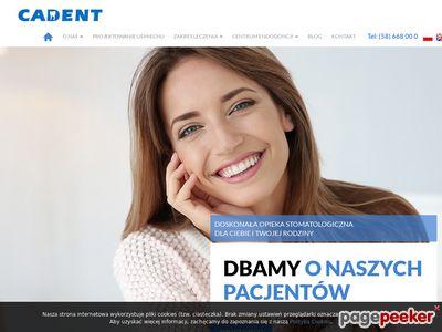 CADENT Implanty zębów Gdynia